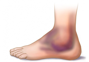 Sprained your ankle? - get some qualified help.