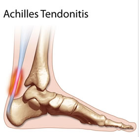 How many beers has your achilles tendon had?